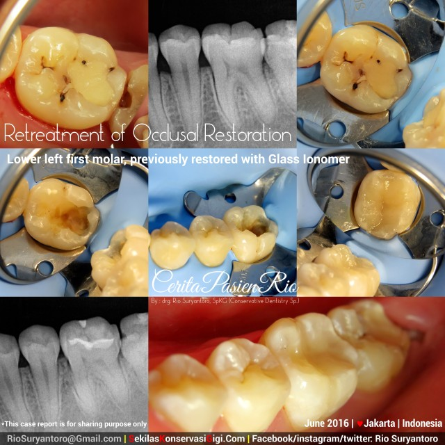 dokter gigi rio suryantoro spesialis konservasi gigi terbaik jakarta gracie mypd jun