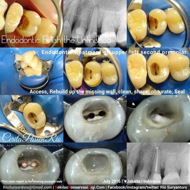 dokter gigi rio suryantoro spesialis konservasi gigi terbaik jakarta PSA 25 hari mypd juli