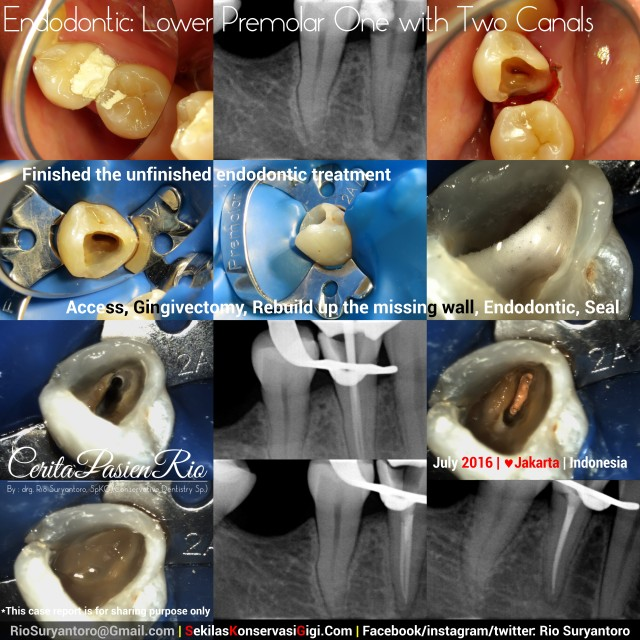 dokter gigi rio suryantoro spesialis konservasi gigi terbaik jakarta PSA 44
