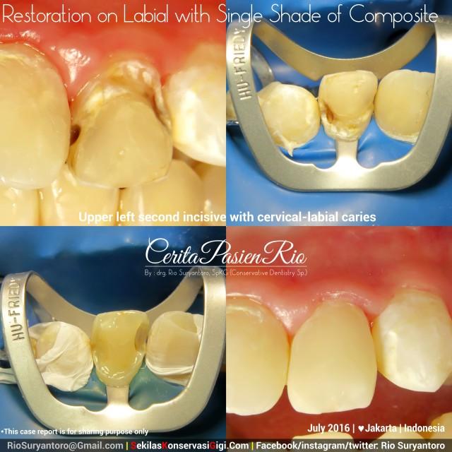 dokter gigi rio suryantoro spesialis konservasi gigi terbaik jakarta RK 22 jul anin