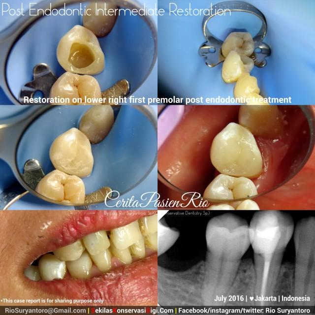 dokter gigi rio suryantoro spesialis konservasi gigi terbaik jakarta RK 44 jul suli