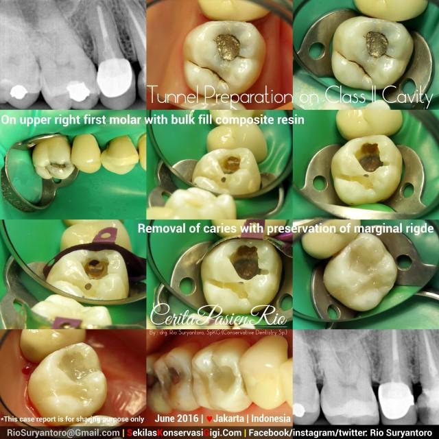 dokter gigi rio suryantoro spesialis konservasi gigi terbaik jakarta tambal resin komposit 16 mart jun