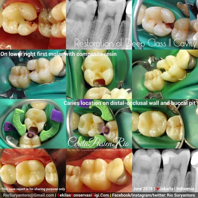 dokter gigi rio suryantoro spesialis konservasi gigi terbaik jakarta tambal resin komposit 46 alvi jun