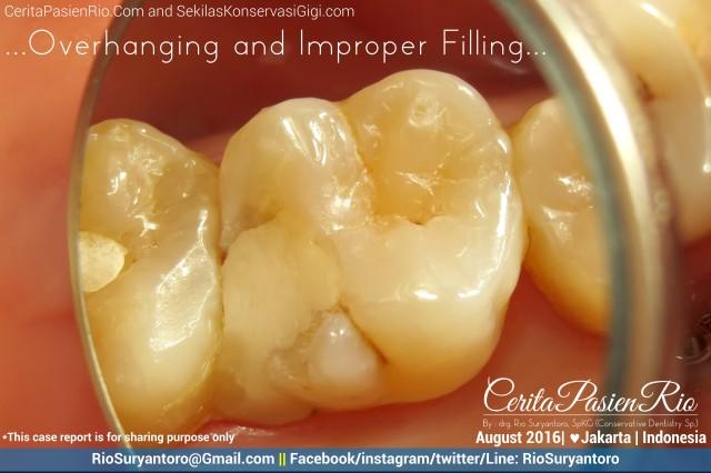dokter gigi rio suryantoro spesialis konservasi gigi jakarta relax agst dini k