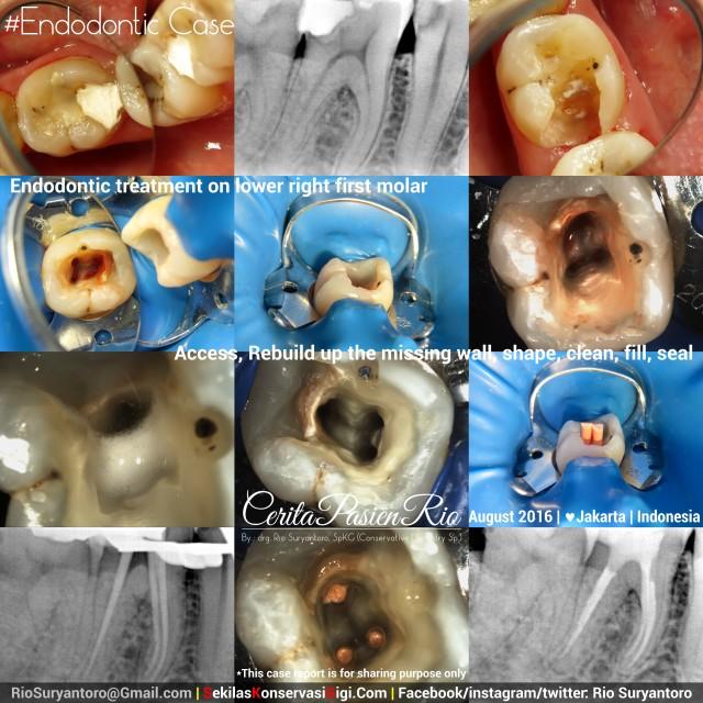 dokter gigi rio suryantoro spesialis konservasi gigi terbaik jakarta PSA 46 belmond slipi (2)