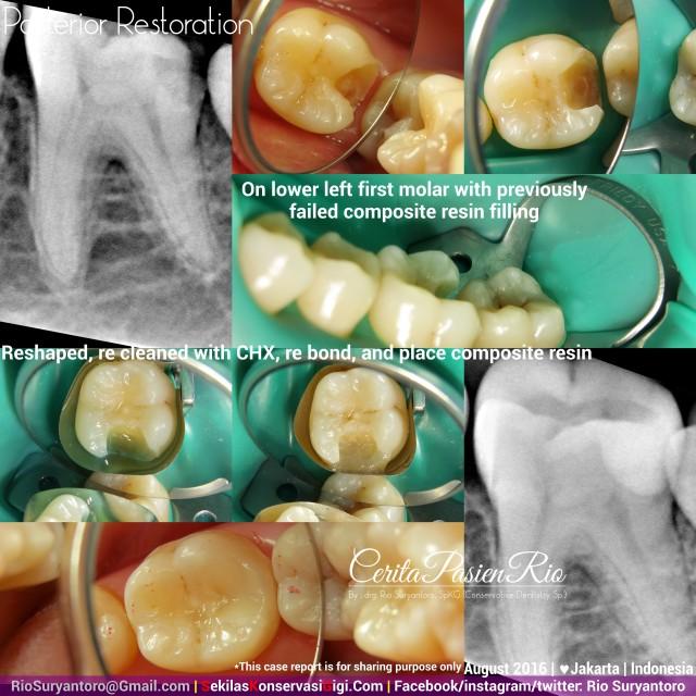 dokter gigi rio suryantoro spesialis konservasi gigi terbaik jakarta RK 36 2 nana agst
