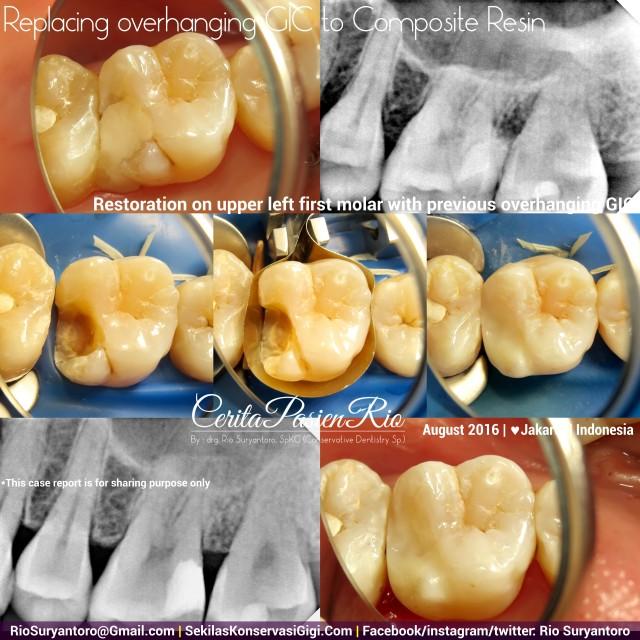 dokter gigi rio suryantoro spesialis konservasi gigi terbaik jakarta RK AF 2 Dini Alker