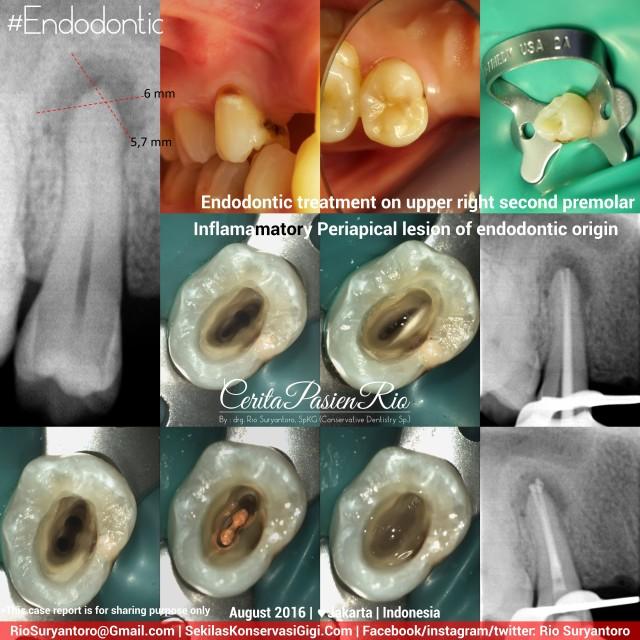 dokter-gigi-rio-spesialis-konservasi-gigi-terbaik-jakarta-indonesia-endodontist-iva-august-slipi