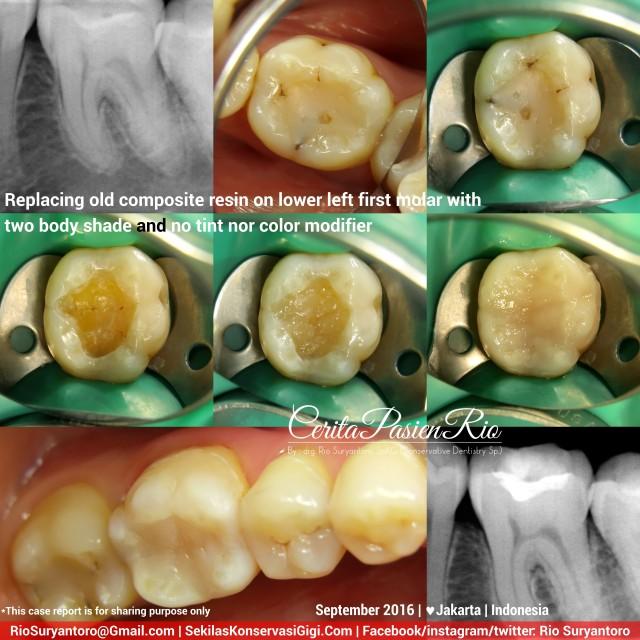 dokter-gigi-rio-suryantoro-spesialis-konservasi-gigi-terbaik-jakarta-post-endo-evi-line-slipi-sept