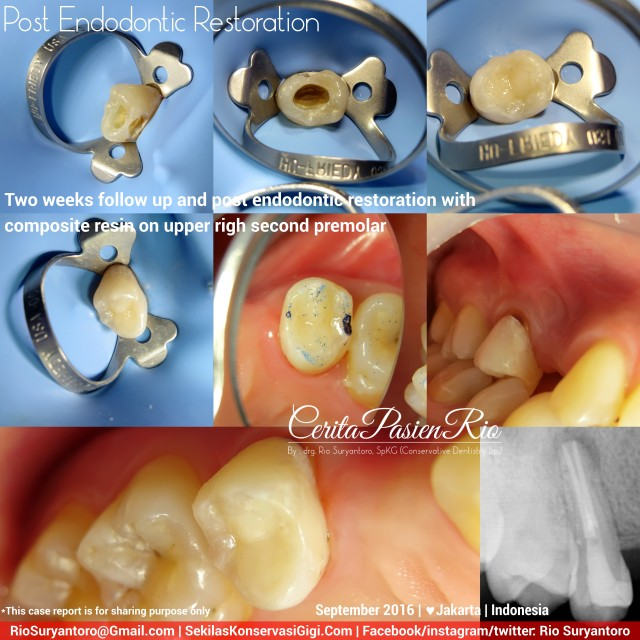 dokter-gigi-rio-suryantoro-spesialis-konservasi-gigi-terbaik-jakarta-post-endo-iva-slipi-sept