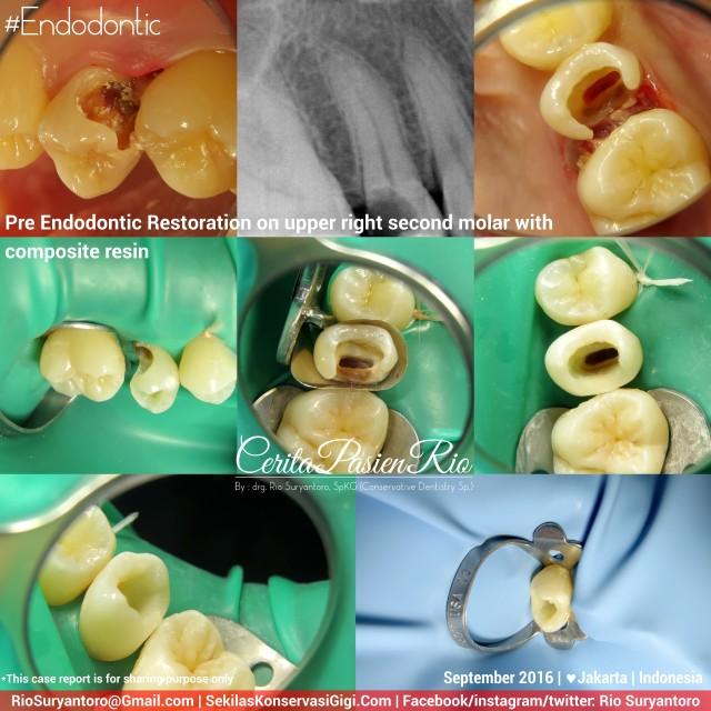 dokter-gigi-rio-suryantoro-spesialis-konservasi-gigi-terbaik-jakarta-pre-endo-aullia-sept-slipi