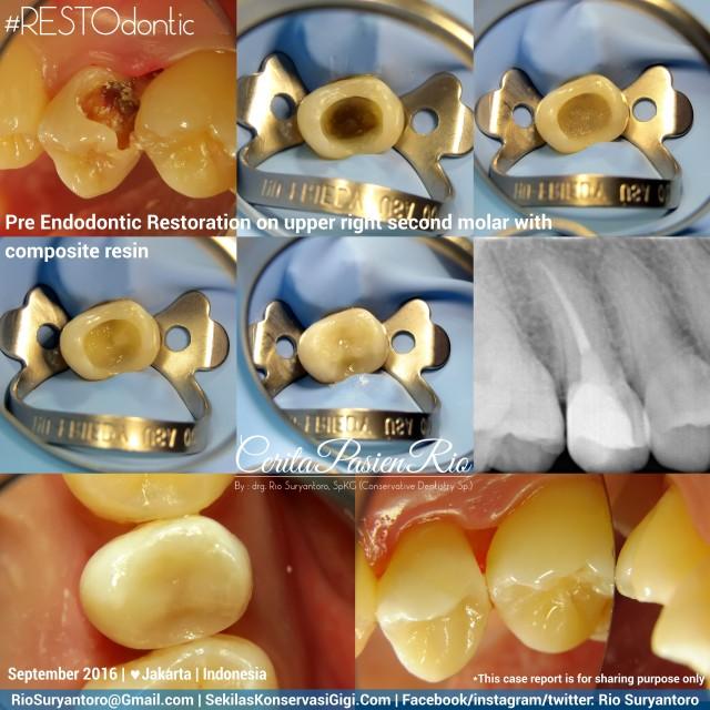 dokter-gigi-rio-suryantoro-spesialis-konservasi-gigi-terbaik-jakarta-pos-endo-aullia-sept-slipi