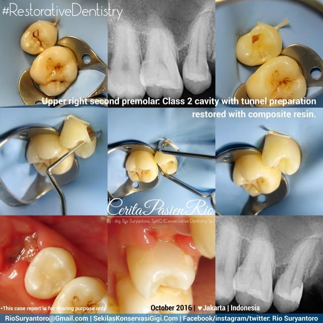 dokter-gigi-rio-suryantoro-spesialis-konservasi-gigi-terbaik-jakarta-kelas-2-mellynda-mypd