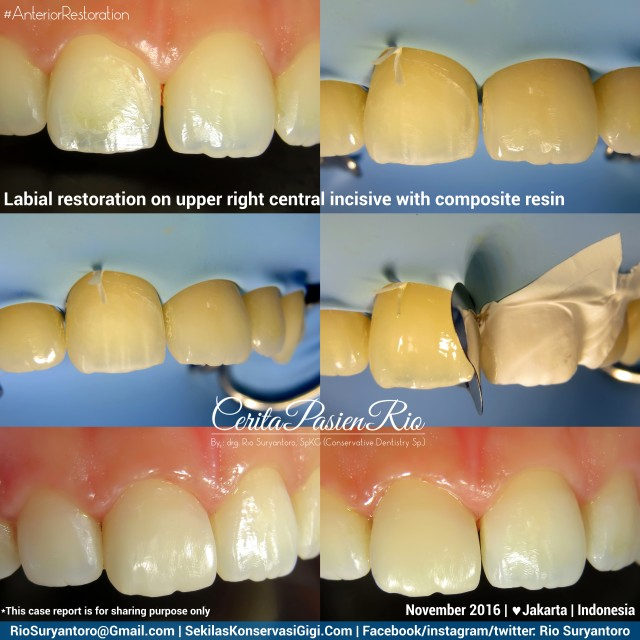 dokter-gigi-rio-suryantoro-spesialis-konservasi-gigi-terbaik-jakarta-koas-alker-11