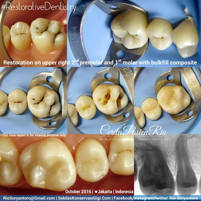 dokter-gigi-rio-suryantoro-spesialis-konservasi-gigi-terbaik-jakarta-nadiah-slipi-16